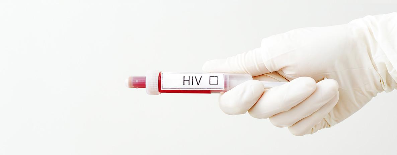 Teste de HIV: onde fazer?